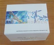 免疫球蛋白,免疫球蛋白酶联免疫试剂盒