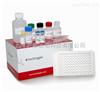 新城疫荧光定量RT-PCR检测试剂盒